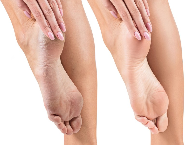 Trockene Haut an den Füßen